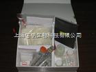 蛋白酶(Protease)ELISA试剂盒