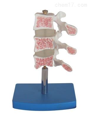 骨质疏松症模型 人体各大器官