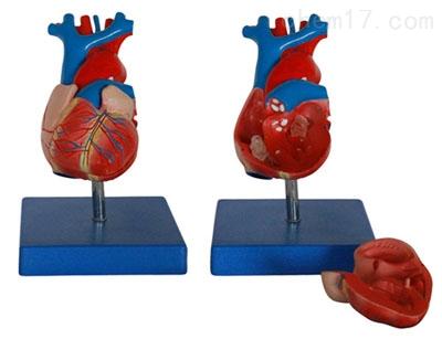 自然大心脏解剖模型 人体各大器官