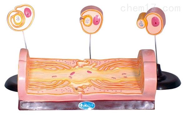 周围神经纤维髓鞘的发生和有髓纤维的超微结构 生物模型