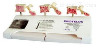骨质疏松症模型(三部件)  教学模型