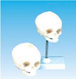 新生儿头颅骨模型  教学模型