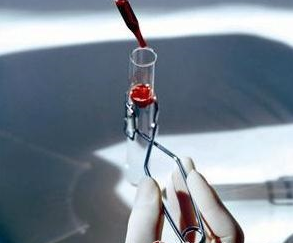我国科学家发现全新广谱肿瘤标志物并获准用于临床